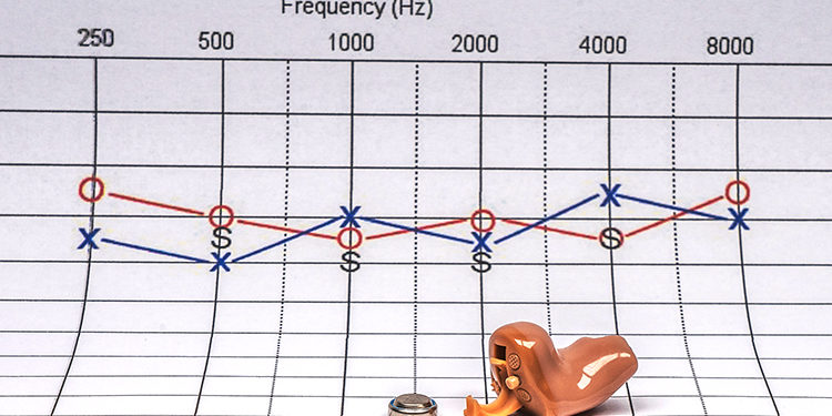Hearing aid on a audiogram background